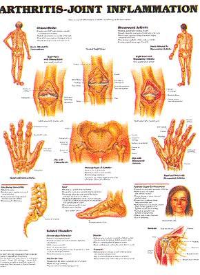Bienfaits Boswellia - Arthrite - usure et érosion des articulations - medi